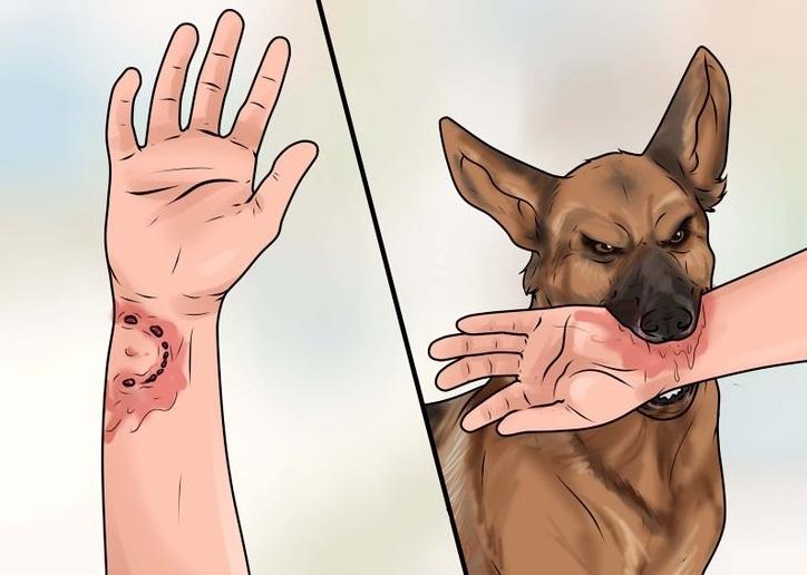 Vết thương khi bị chó cắn