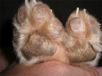 Sừng hóa gan bàn chân